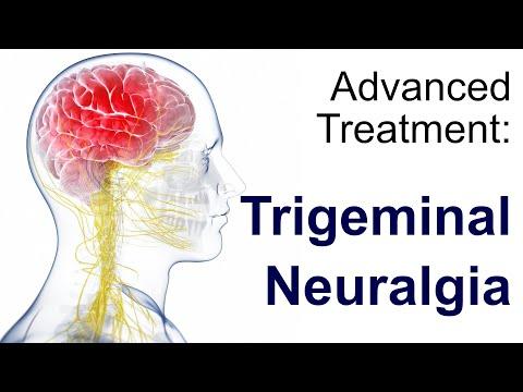 Trigeminal Neuralgia Part 1 - Clinical Menifestation.