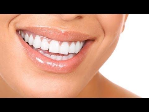 Как курение разрушает зубы? Школа здоровья 17/05/2014 GuberniaTV