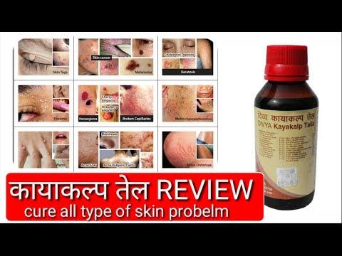Patanjali Divya kayakalp Oil review