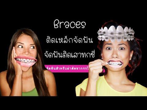 จัดฟัน ดัดฟัน: ติดเหล็กจัดฟัน: dental braces