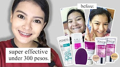 hqdefault - Best Acne Treatment In The Philippines