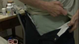 Menuangkan Es ke Kepala untuk Dukung Penelitian Penyakit Lou Gehrig's Syndrome -NET24.