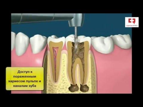 Пломбирование каналов зубов: существующие методы и их