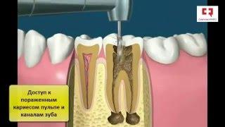 Лечение каналов зуба при кариесе(, 2016-01-16T22:17:06.000Z)