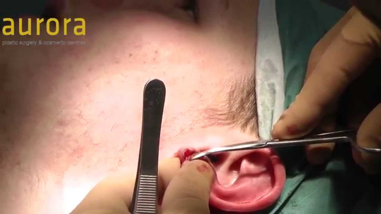 Unilateral Stretched Or Flesh Tunnel Earlobe Repair 46mm Aurora Clinics