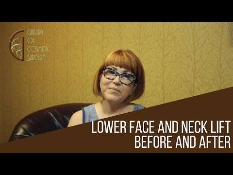 Lower Face and Neck Lift Before and After Testimonial