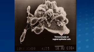 Trichomonas and HIV