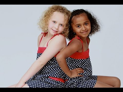10 Unusual Twins You Won't Believe Exist!