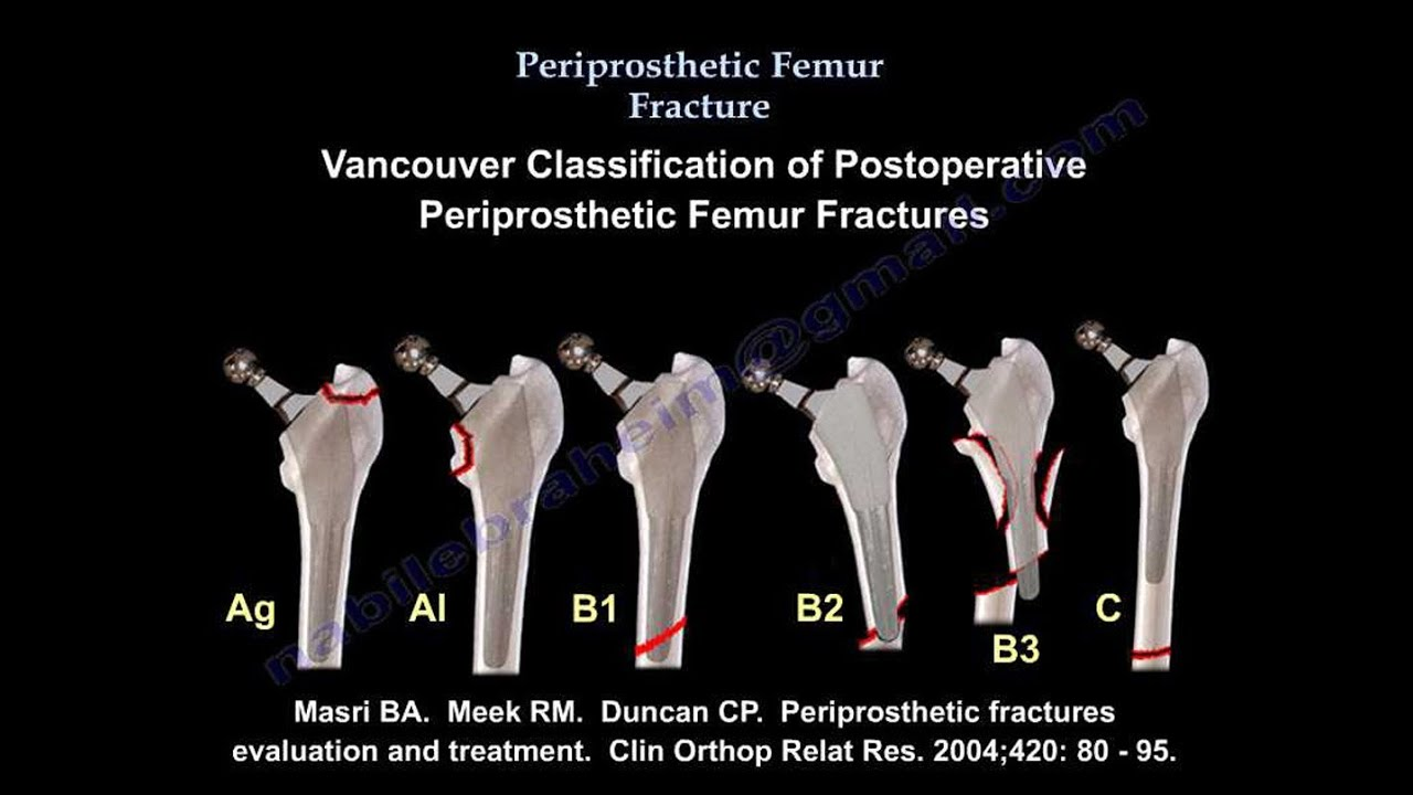 Femur Fracture. Periprosthetic fracture - Everything You Need To Know - Dr. Nabil Ebraheim - YouTube