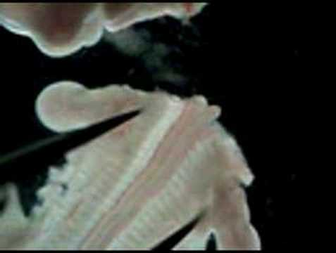 Rat E14 dorsal spinal cord dissection (example 1 of 2). - YouTube
