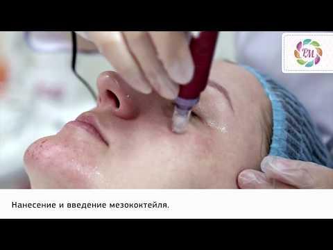 Фракционная мезотерапия лица | Процедура Роял Медик