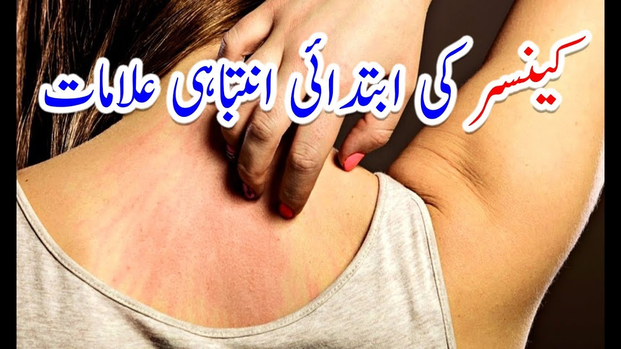 12 Early Warning Signs Of Cancer Most People Ignore Cancer Ki Alamat In Urdu کینسر کی علامات Youtube