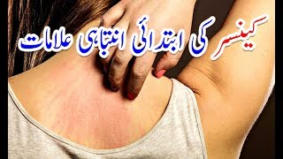 12 Early Warning Signs of Cancer Most People Ignore# Cancer ki Alamat in Urdu | کینسر کی علامات