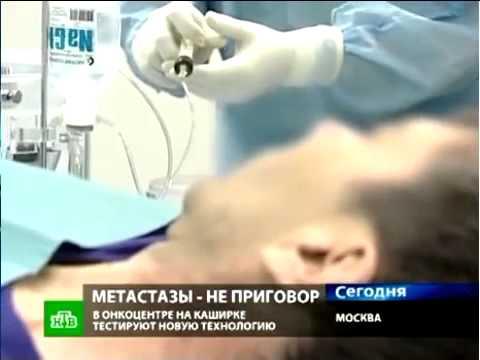 лечение метостазов печени