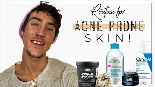 Easy Skincare Routine for Acne Prone Skin