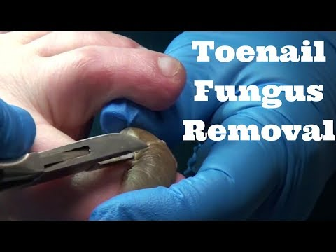 Shocking Toenail Fungus Removal – Cutting Nail Fungus