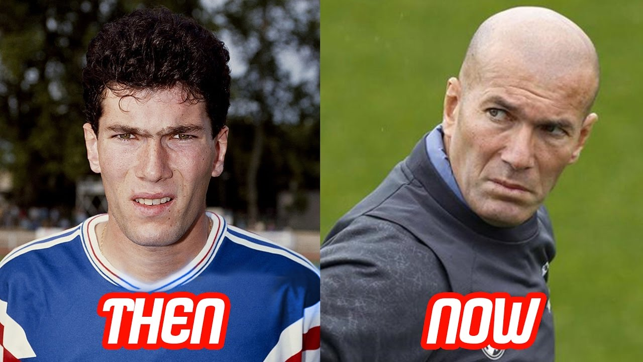Zinedine Zidane Zizou Transformation Before And After Face