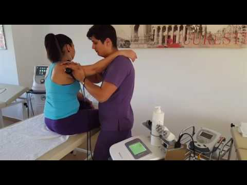 periartrita scapulohumerala exercitii