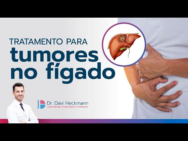 Tratamento para tumores no fígado | Dr. Davi Heckmann