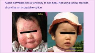 Atopic dermatitis managed without topical corticosteroids – Video Abstract [ID 109946]