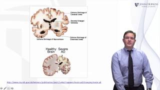 Alzheimer's Disease: A Brief History - Living with Dementia by JHU #3
