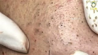Blackheads and Acne Treatment on The Face with Relaxing Music 40430!