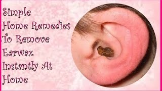 Simple Home Remedies To Remove Earwax Instantly At Home