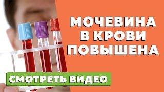 Мочевина в крови повышена  Причины и лечение почечной недостаточности