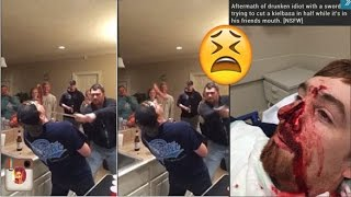 Drunk Fail: Man Chops Friends Nose Off While Attempting Sword Trick! [MUST WATCH]