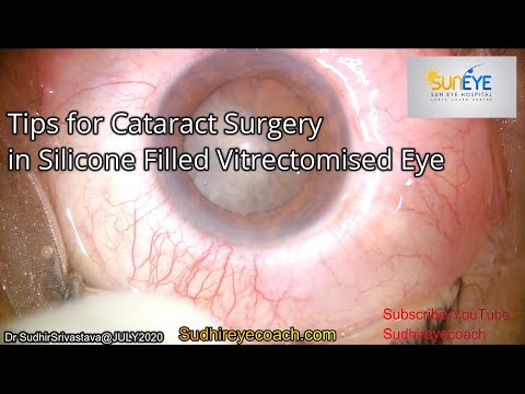 phaco-cataract-surgery-in-silicone-filled-vitrectomised-eye-dr-sudhir-srivastava
