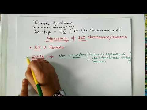 #TurnerSyndrome, #Chromosomaldisorder, #Aneuploidy. Turner's Syndrome, Chromosomal Disorder.