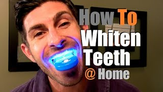 How To Whiten Teeth At Home | Teeth Whitening Options Thumbnail