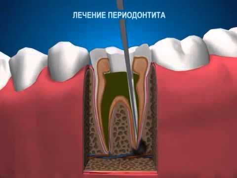 Периодонтит зуба — симптомы, классификация и лечение в