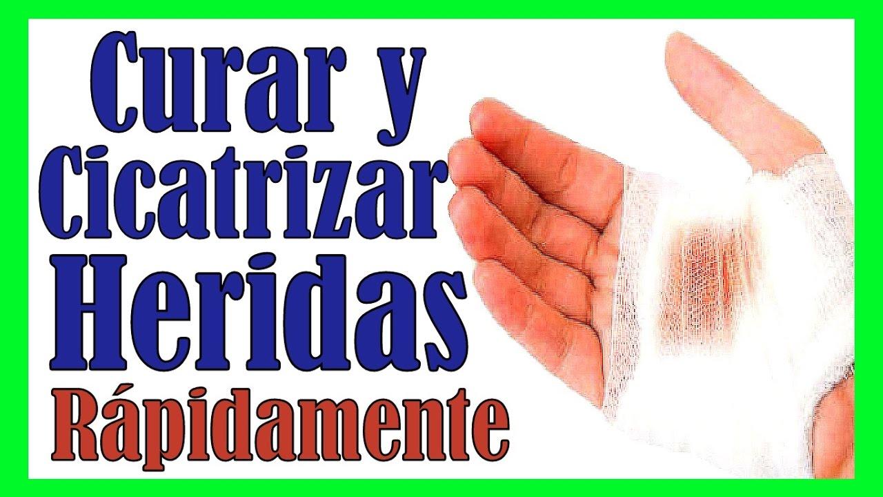 CICATRIZAR UNA HERIDA RAPIDO DE MANERA NATURAL Remedios ...