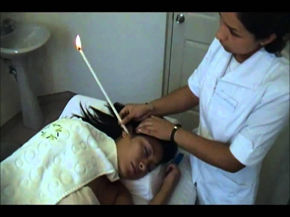 Como quitar la cera del oido con una vela