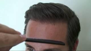3799 FUT Hattingen Hair Transplantation