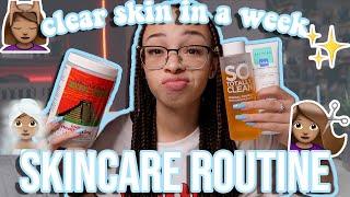 How I Got Clear Skin in a Week! | My Skincare Routine | aliyah simone