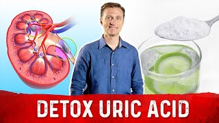 Detoxify Uric Acid from your Kidneys