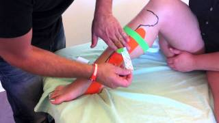 Kinesio tape for tibialis posterior syndrome