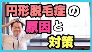 男性円形脱毛症の原因と対策 thumbnail