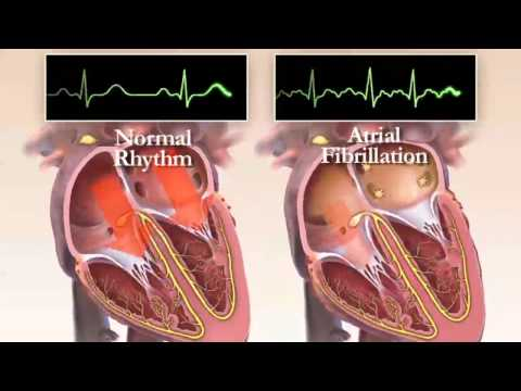 What is Atrial Fibrillation? Chapter 1 (HRS Patient Video)