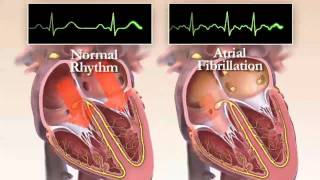 Video What is Atrial Fibrillation? Chapter 1 (HRS Patient Video) download MP3, 3GP, MP4, WEBM, AVI, FLV November 2017