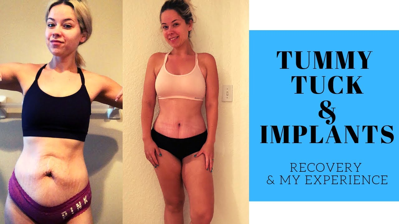 Tummy Tuck Recovery Breast Lift And Implants After Losing