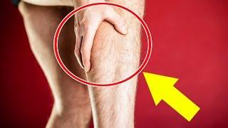 En piernas Cómo las curar los la parte superior de calambres