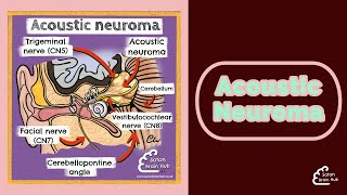 Acoustic Neuroma Surgery.