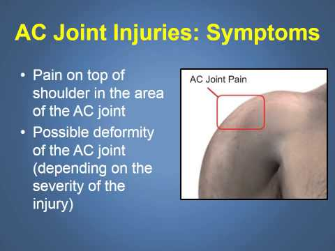how to treat shoulder joint injuries The initial treatment of shoulder separation (ac joint injury) should be to immobilize the joint this will prevent further aggravation of the injury.