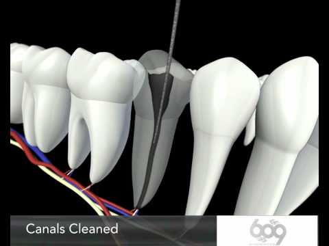 Root Canal Procedure 3D Animation - Endodontics Los ...