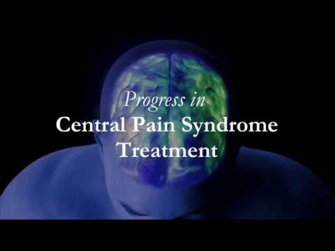 Dr Kukurin Progress In Post Stroke Central Pain Syndrome
