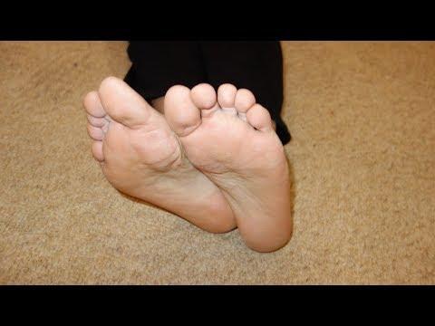 Как лечить грибок на ногах народными средствами