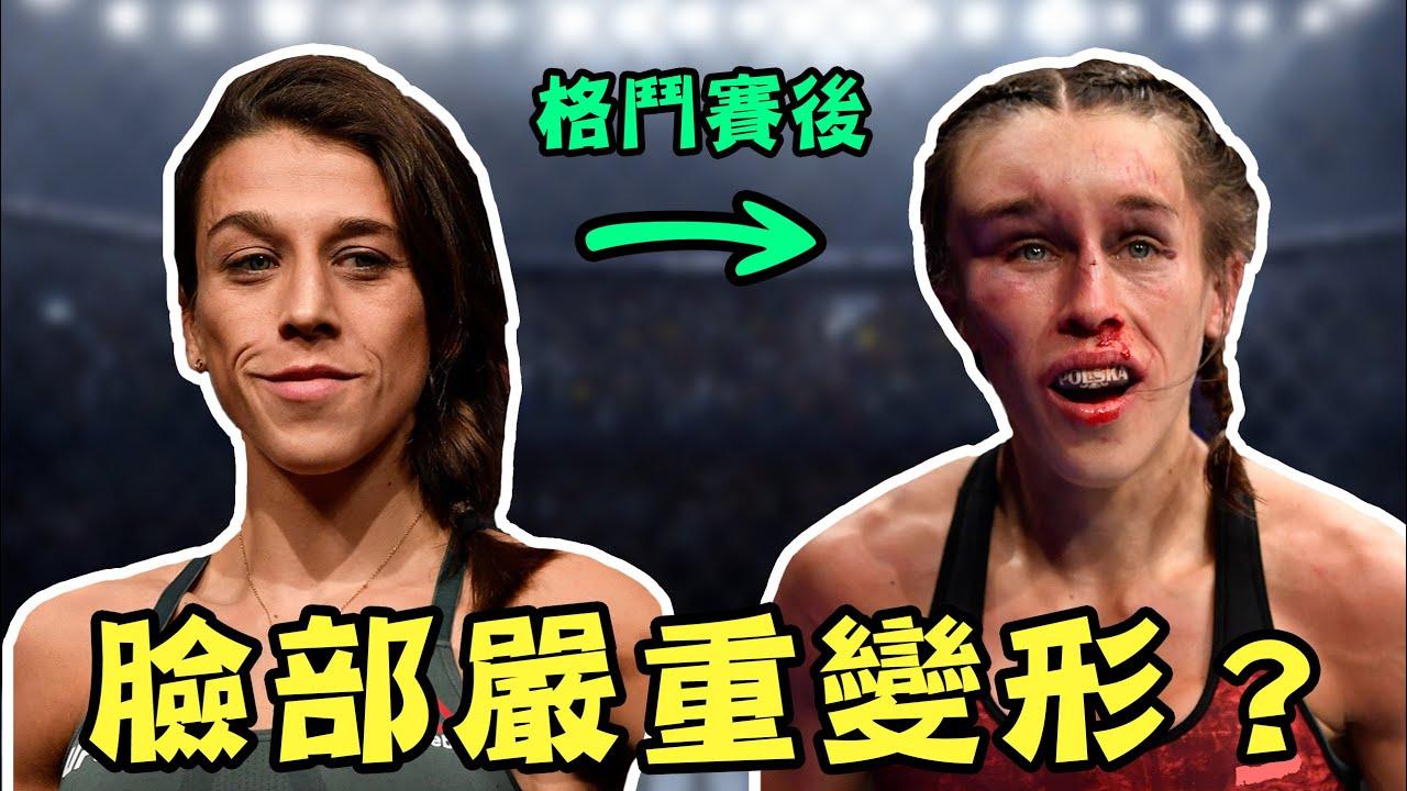 格鬥賽後臉部嚴重變形,到底是受了什麼傷!?【運動Sun害】